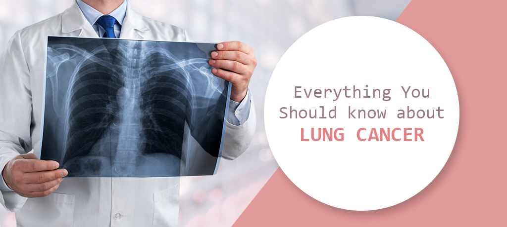 Everything You Should know about Lung Cancer